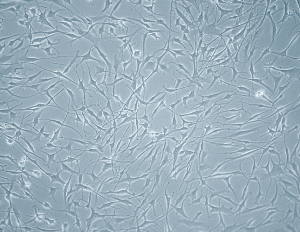 Bronchial Fibroblasts