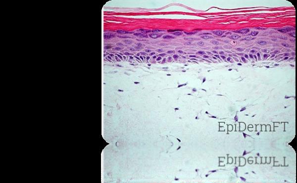 EFT Histology1