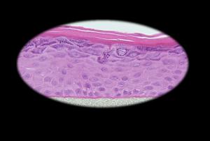 EpiDerm Tissue Model