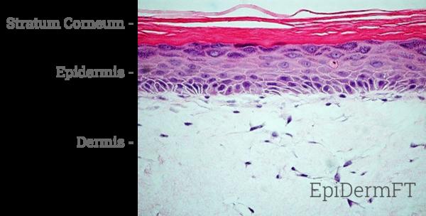EpiDermFT Histology