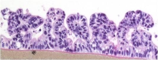 EpiIntestinal Histology