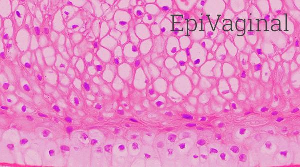 EpiVaginal Histology New