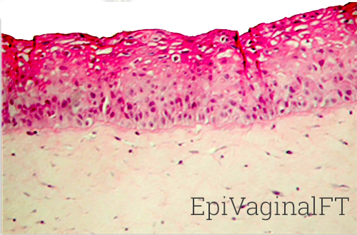 EpiVaginalFT Histology New