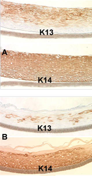 Figure 1: Immuno-staining of: A) EpiOral and B) EpiGingival tissue for cytokeratin K13 and K14.