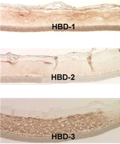 Figure 3: Immuno-staining of the GIN-100 tissue for human beta defensins (HBDs).