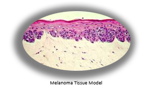 Melanoma copy