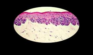 Melanoma copy