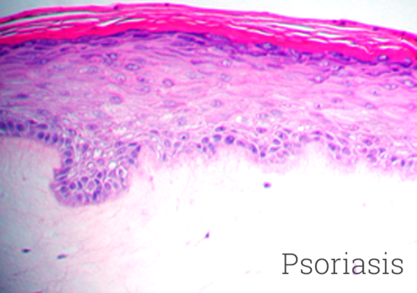 Psoriasis Histology New
